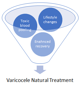 varicocele  natural treatments